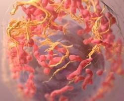 Imagen de carcinoma